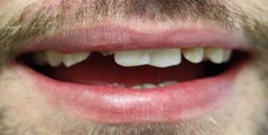Before Dental Implant
